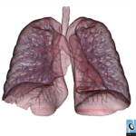 lung3small
